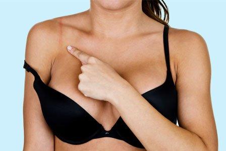 5 sinais de que você está usando o tamanho errado de sutiã